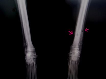 x-ray 110417