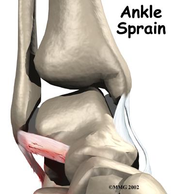 ankle_sprain_intro01.jpg
