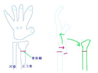スミス骨折-1