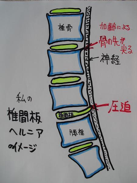 1 椎間板ヘルニア図