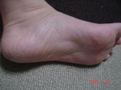 フットケア前の足