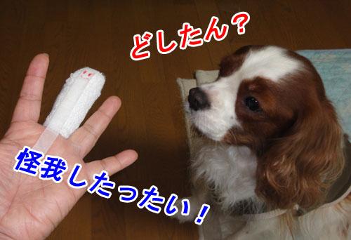 名誉の中指負傷1