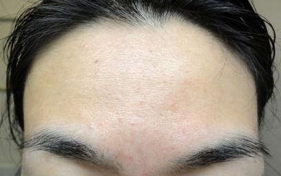 5weeksforehead.jpg