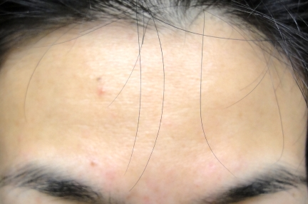 6weeksforehead_20110408095931.jpg