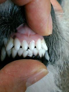 前から見た歯