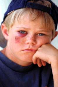 スポーツによる目の怪我